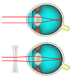 Shortsighted eye diagram Stock Images