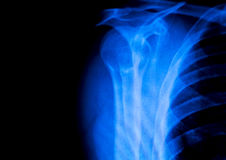 Shoulder back ribs Xray scan royalty free stock photography