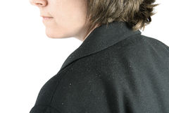 Shoulder with dandruff royalty free stock image