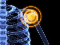 Shoulder inflammation Royalty Free Stock Image
