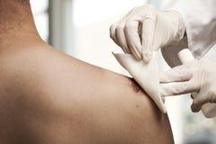 Shoulder injury Royalty Free Stock Photos