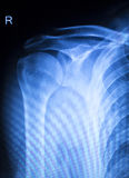 Shoulder injury orthopedics xray scan Royalty Free Stock Photography
