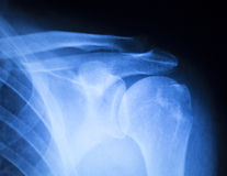 Shoulder injury orthopedics xray scan Stock Photography