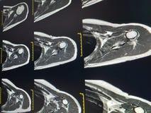 Shoulder MRI Scan Magnetic Resonance Image High Resolution. Medical concept royalty free stock image