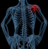 Shoulder pain. 3D render of a medical skeleton with the shoulder joint highlighted Stock Photo