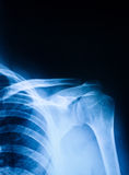 Shoulder pain. Blue colored x-ray of the shoulder royalty free stock images