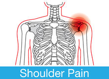 Shoulder pain outline Stock Photography
