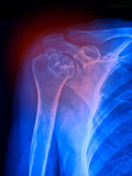 Shoulder pain, x ray Stock Photo