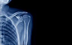 X-ray shoulder in blue tone. Shoulder x-ray banner in blue tone royalty free stock photography