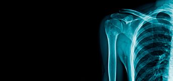 Shoulder x-ray banner royalty free stock photo