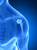 Shoulder replacement Royalty Free Stock Images