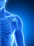 Shoulder replacement. 3d rendered illustration of a shoulder replacement Stock Image