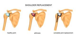 Shoulder replacement. surgery. Vector illustration of shoulder replacement. surgery. traumatology vector illustration