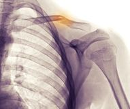 Shoulder x-ray, clavicle (collarbone) fracture Stock Photos