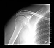 Shoulder xray. Isolated on black background Stock Photography