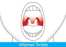 Showing Inflamed tonsils. Showing Inflamed tonsils by open mouth. This illustration about health and medical Stock Photography