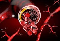 Sichelzellanämie, Blutgefäß mit normaler und deformated sichelförmiger Illustration 3D zeigend stock abbildung