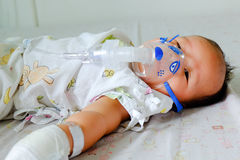 Sick baby with nebulizer mask Royalty Free Stock Photos