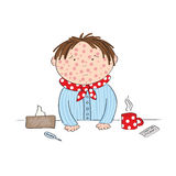 Sick boy with chickenpox, measles, rubeola or skin rash. Standing behind the table with hot tea, medicine, thermometer and paper handkerchief - original hand Stock Photography