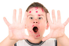 Sick chicken pox boy Royalty Free Stock Photo
