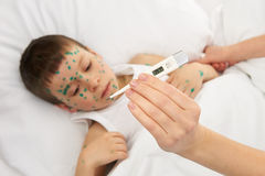 Sick child in bed has the virus on skin Stock Photography