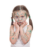 Sick child. chickenpox Stock Image