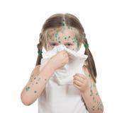 Sick child. chickenpox Royalty Free Stock Photos