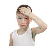 Sick child. chickenpox Stock Image