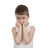 Sick child. chickenpox Stock Photography