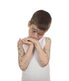 Sick child. chickenpox Royalty Free Stock Image