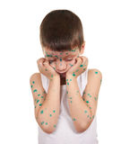 Sick child has the virus on skin Stock Images