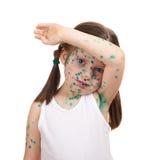 Sick child has the virus on skin Stock Photo