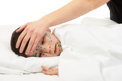 Sick child has the virus on skin Royalty Free Stock Photography