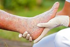 Sick elderly leg. Doctor / Nurse holding an elderly  woman's sick leg Stock Images