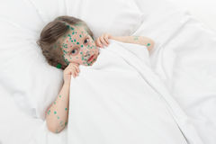 Sick girl lying in bed Royalty Free Stock Image