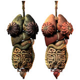 Sick and healthy internal organs of the woman Royalty Free Stock Photo