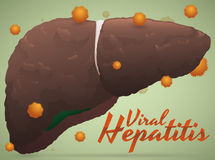 Sick Liver Result of Viral Hepatitis with Virus Around It, Vector Illustration. Consequences of viral hepatitis in a healthy liver; showing the importance of Royalty Free Stock Photo