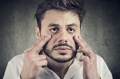 Sick man looking in a mirror has yellowish eyes as sign of possible liver infection or other disease. Hepatic disease. Sick man looking in a mirror has yellowish royalty free stock image