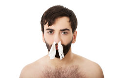 Sick man with tissues in nose. Stock Images