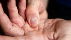 Sick men`s hands ask for charity. Hands of a man with psoriasis.