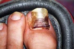 Sick nail. A sick nail with blood Royalty Free Stock Photo