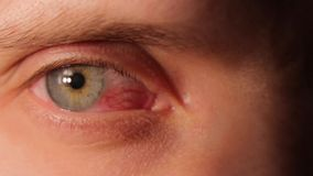 Sick Red Human Eye. Sick red eye of a man stock footage