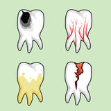 Sick Teeth. Four teeth affected by various diseases Royalty Free Stock Photos