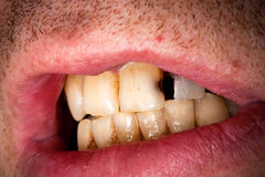 Sick tooth Stock Images