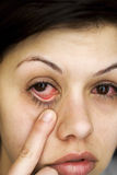 Sick woman's eyes Stock Image