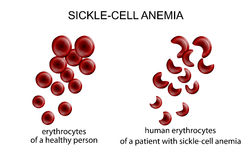 Sickle cell anemia Stock Photo