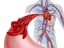 Free Sickle Cell Circulation Blockage Royalty Free Stock Photography - 140393737