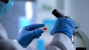 SIDA contrôle, chercheur disposant à examiner la prise de sang sous le microscope photo stock