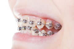 Side view of dental braces on teeth close up. During orthodontic treatment Stock Photos