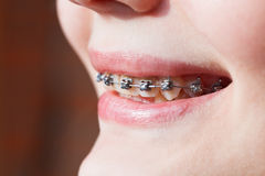 Side view of dental braces on teeth. Of upper jaw before Orthodontic Treatment Stock Photo